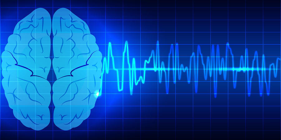 brain-wave-fmbr